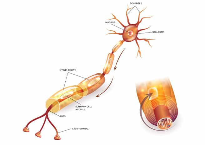 an image of the cell of de myelination as the root cause of ALS