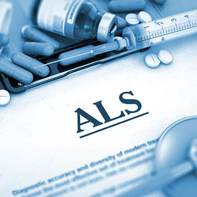 Symptoms of ALS